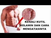 Tips Mudah Menghilangkan Kutil Kelamin dengan Obat Tradisional, obat kutil kelamin alami paling ampuh, cara mengobati kutil kelamin dengan albothyl, salep kutil kelamin