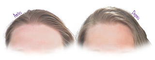 Antes e Depois Shampoo Sem Sulfato Avon Advance Techniques Solução de Limpeza 3 em 1