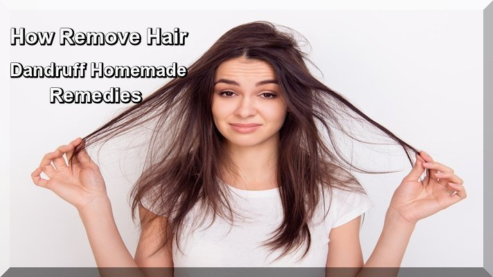 How Remove Hair Dandruff Homemade Remedies