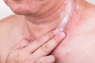 Asian man applying antibiotic cream onto wound from removed mole via skin graft.
