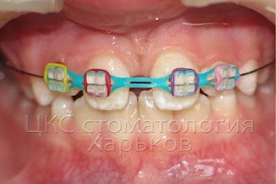 лечение брекетами  сверхкомплектных зубов