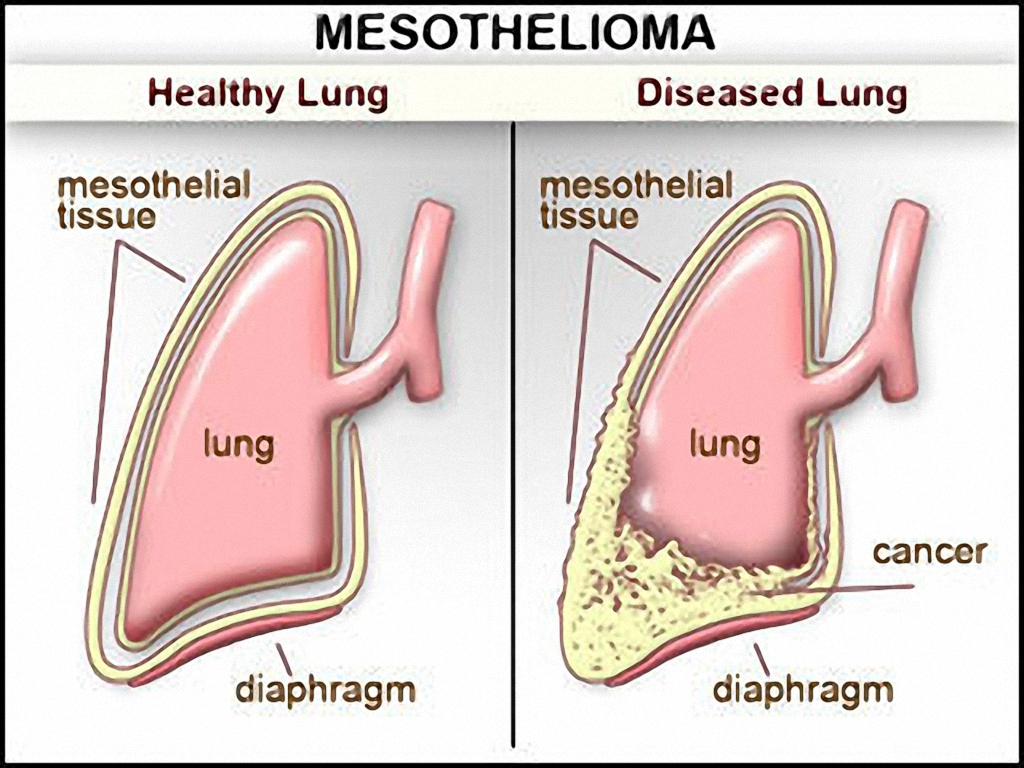 mesothelioma stages