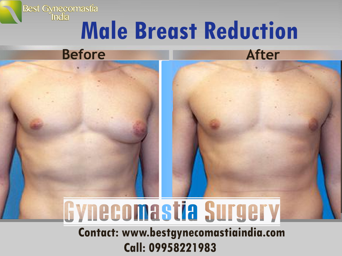 Breast male photo reduction
