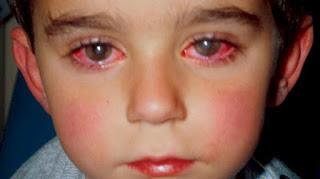Benda Ini Sering Dianggap Mainan, Dampaknya Fatal Bagi Penglihatan Mata