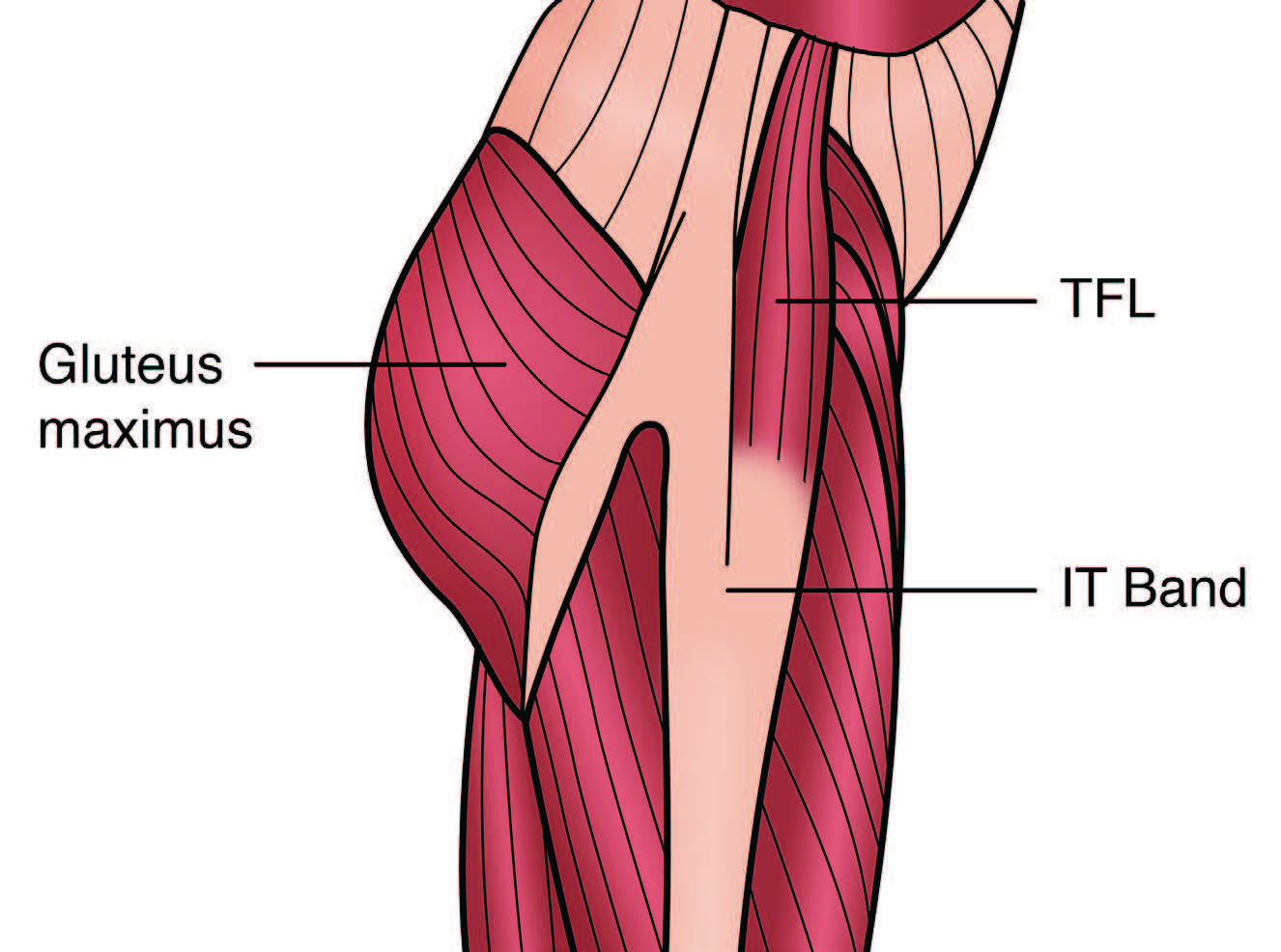 Tensor Fascia Latae Dysfunction and Sciatica