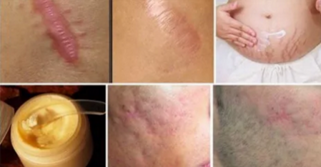 Say Good Bye To Your Scars In Less Than a Month