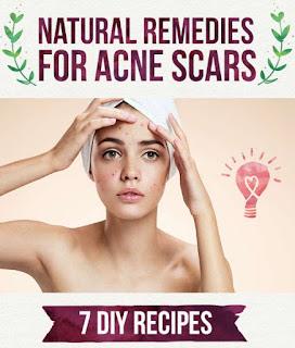 Medicine For Acne