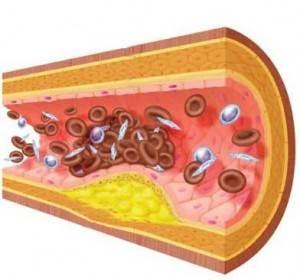 Obat Trigliserida