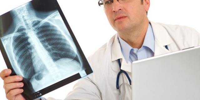 Cara Menyembuhkan Penyakit Paru Pneumotoraks Secara Alami