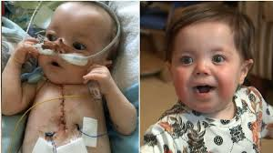 'He's a fighter': 9 months old Baby survives 25 heart attacks in one day