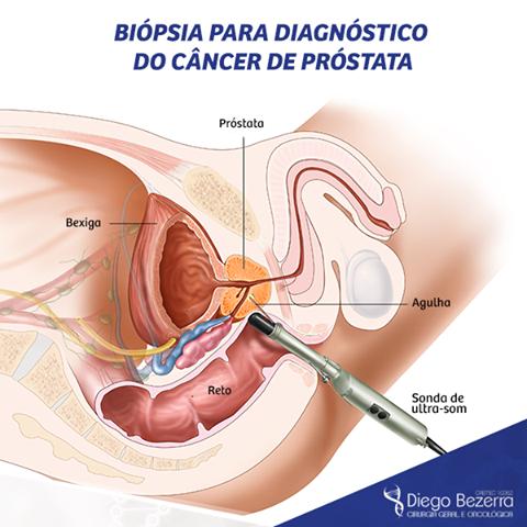 diagnostico cancer en la prostata