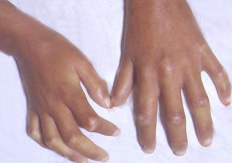 Herbal Treatment of Scleroderma Scarring of the Skin Joints