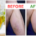 Wonderful Oil That Will Effectively Help You To Eliminate Varicose Veins Forever