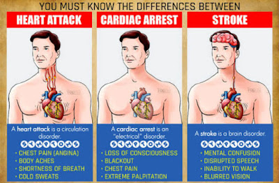 symptoms of heart attack, symptoms of cardiac arrest, symptoms of stroke