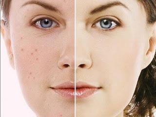 Masque visage peaux grasses ou acnéiques