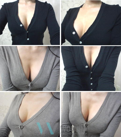 짱이뻐! - Real Volume of Korean Breast Plastic Surgery