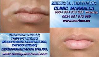 TRATAMIENTO PARA LAS MANCHAS DE VITILIGO clínica estética micropigmentación ofrece tratamiento Vitiligo