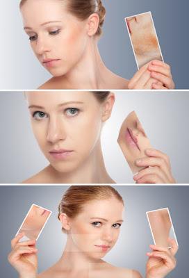 Réduire les dommages causés par le stress sur la peau