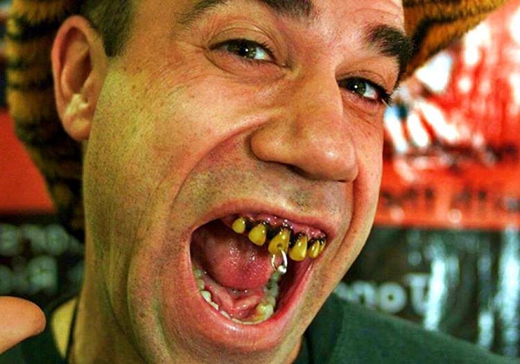 Jonah White takma diş satarak sıfırdan zengin olanlar arasına girmiş bir kişidir.