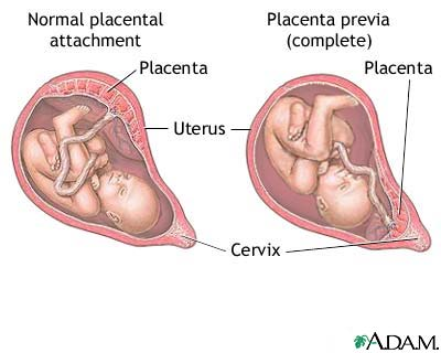 The well rounded mama placenta previa and prior cesarean sides of the uterus see diagram it is a significant complication in pregnancy the number of previas has increased in recent years in tandem with the ccuart Choice Image