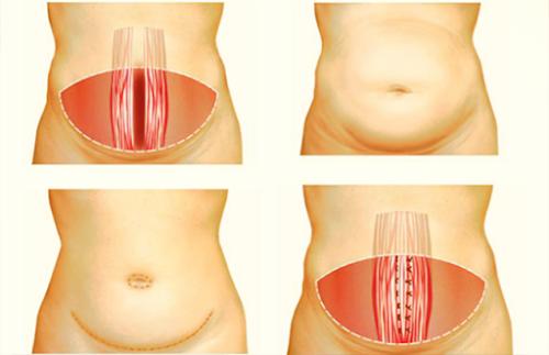 Conoce sobre la Abdominoplastia