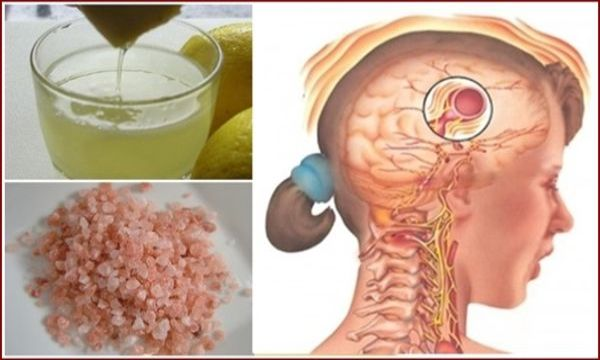 This Old Natural Drink Will Make Your Migraine To Disappear In Just 10 Minutes