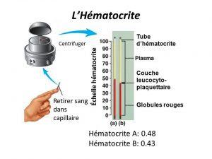 pemeriksaan hematokrit,pemeriksaan hematokrit adalah,pemeriksaan hematokrit pdf,pemeriksaan hematokrit metode mikrohematokrit pdf,pemeriksaan hematokrit metode mikrohematokrit,pemeriksaan hematokrit metode makro,pemeriksaan hematokrit metode mikro,pemeriksaan hematokrit mikro,pemeriksaan hematokrit metode makro dan mikro,pemeriksaan hematokrit metode wintrobe,pemeriksaan hematokrit pada pasien dbd,pemeriksaan hematokrit untuk,pemeriksaan hematokrit ppt,pemeriksaan hematokrit pada ibu hamil,pemeriksaan hematokrit jurnal,pemeriksaan hematokrit darah,pemeriksaan hematokrit metode makro pdf,journal pemeriksaan hematokrit,laporan pemeriksaan hematokrit,tujuan pemeriksaan hematokrit,jurnal pemeriksaan hematokrit pdf,alat pemeriksaan hematokrit,arti pemeriksaan hematokrit