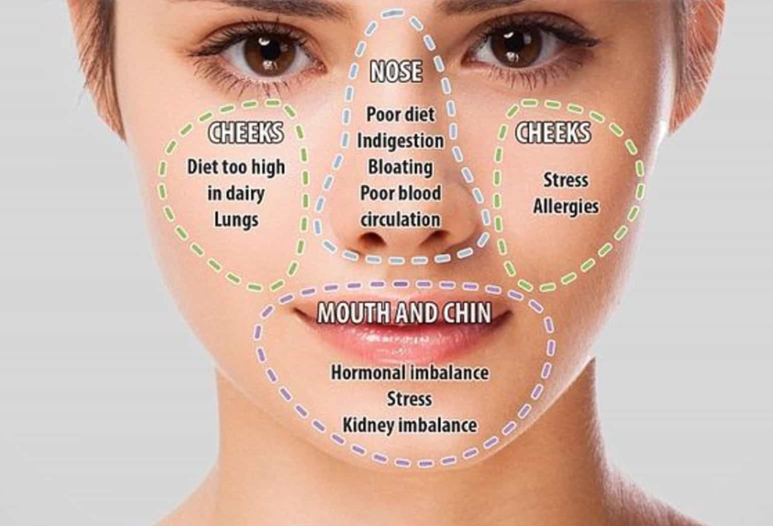 Face Mapping Spots Face Mapping Guidelines to Treat Spots and Problem Skin