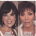 Check out Kris Jenner's photo in 2007(52years) vs 2018(62years)