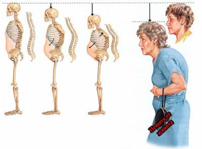 Остеопороза - лекуване с народни методи