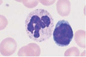 Range of appearance of normal lymphocytes (some of them adjacent to segmented neutrophilic granulocytes).