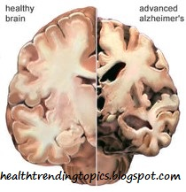 meaning of alzheimer's disease