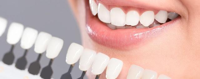 Como-blanquear-los-dientes