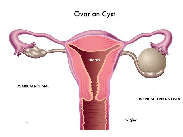 Kenali Gejala, Penyebab dan Cara Mengobati Serta Pencegahan Kista Ovarium