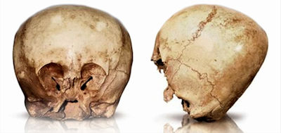 An Anomalous Skull, Formerly Known as 'Star Child' To Undergo New Scientific Analysis