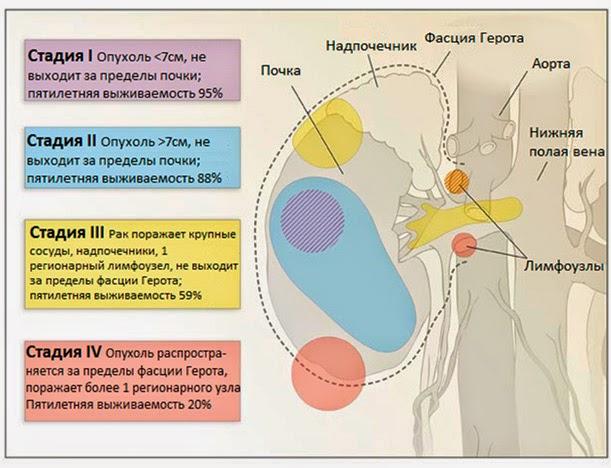 уходу схема лечения при раке молочной железы 3в стадии день взял