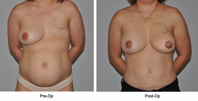 Very talented flap breast reconstruction apologise