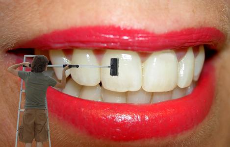 Diş Taşı Temizliği Evde Nasıl Yapılır?