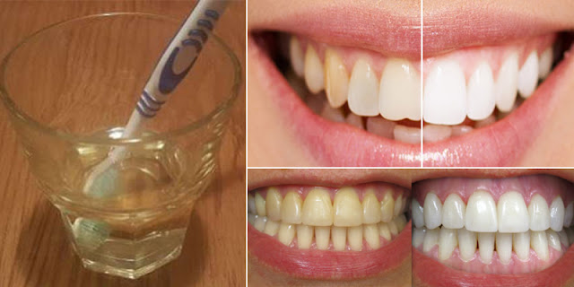 How To Whiten Teeth Within 3 Minutes With 2-Ingredients!