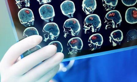 5 Pengobatan Kanker Otak Secara  Medis
