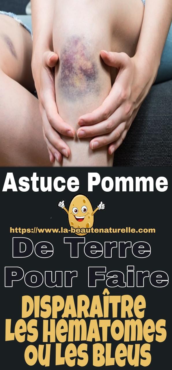 Astuce Pomme De Terre Pour Faire Disparaître Les Hématomes Ou Les Bleus