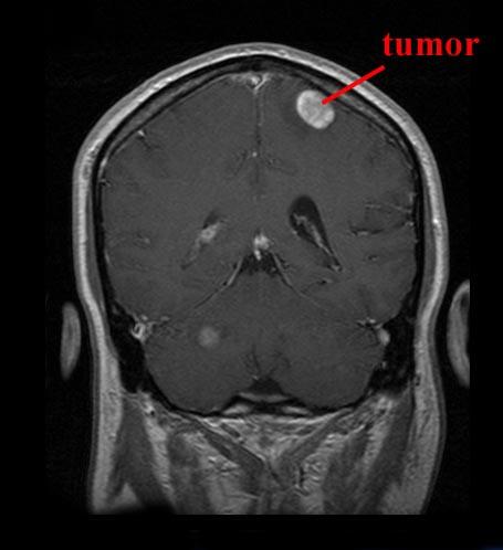 Diagnosis Kanker Otak ~ Info, Artikel, Tips Kesehatan