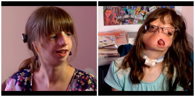 Tienen una hija sin rostro y adoptaron a otra con la misma condición