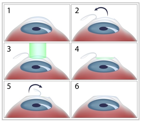 Lasik Eye Surgery - The complete Treatment Guideline