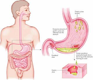 Obat Maag Kronis Alami