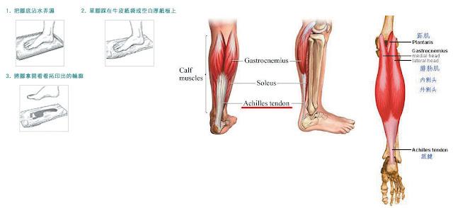 鄭醫師整骨治療保健中心: 阿基里氏肌腱炎Achilles tendonitis