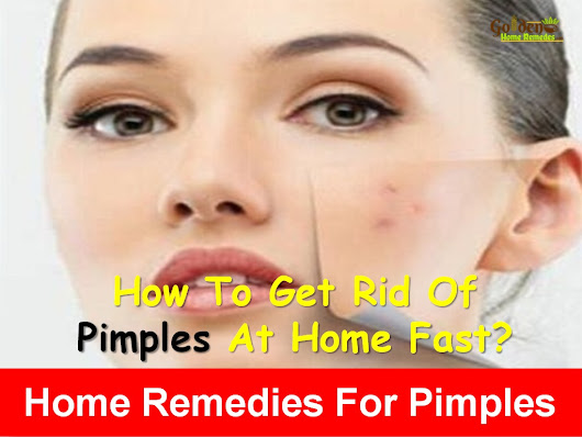 30 Natural Remedies To Get Rid Of Pimples Overnight Fast - Golden Home Remedies