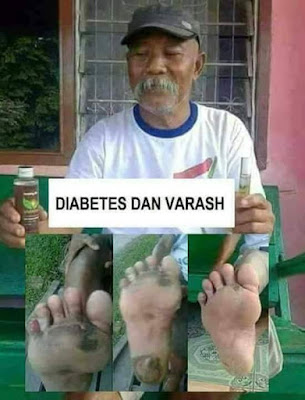 Terapi Dan penyembuhan penyakit Diabetes Menggunakan Produk Minyak Varash