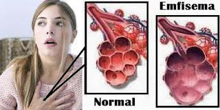 emfisema-www.healthnote25.com