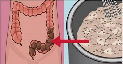 إزلة البراز المتراكم في الجهاز الهضمي ويسبب سموم ومشاكل في الجسم وتطهير القولون معه والجسم كله بهذه الوصفة